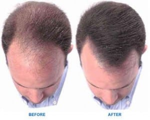 Do Hair Loss Treatments really work?
