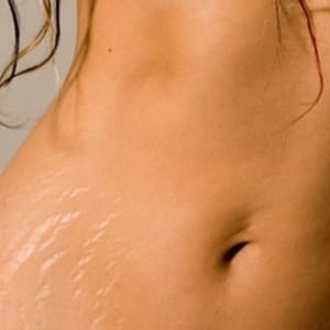Stretch Mark Cream Reviews Does It Really Work