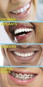 teeth treatment